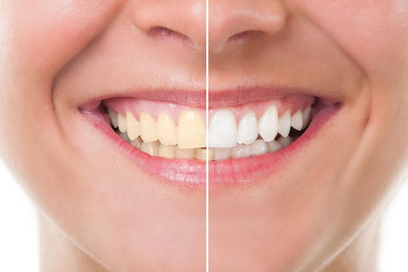 Teeth Whitening in Lancaster